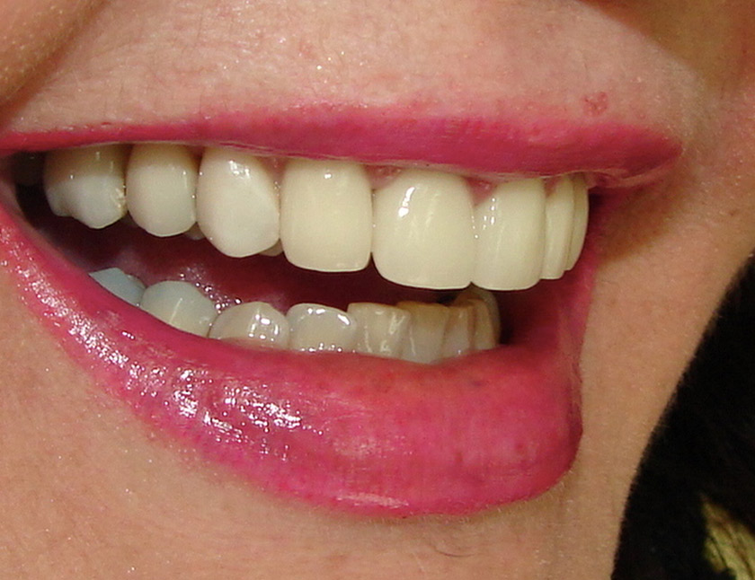 Porcelanas E Facetas Dr Giovanni Pedruzzi Clinica Odontologica